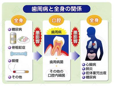歯周病歯科検診